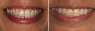 How much does teeth whitening cost? | Before and after teeth whitening, courtesy of Eisdorfer Dental Group