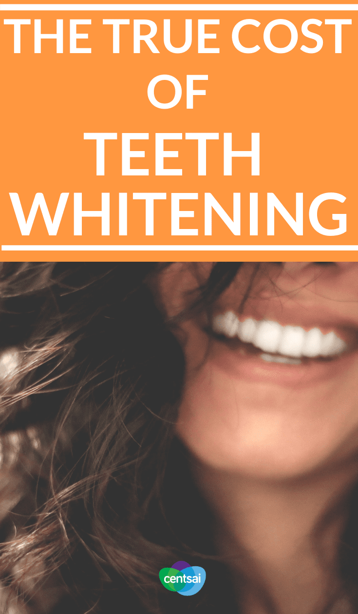 The True Cost of Teeth Whitening. So you want your pearly whites to be pearlier and whiter, but how much does teeth whitening cost? Are there cheap methods? Let's find out. #health #beautyblog #beautytips